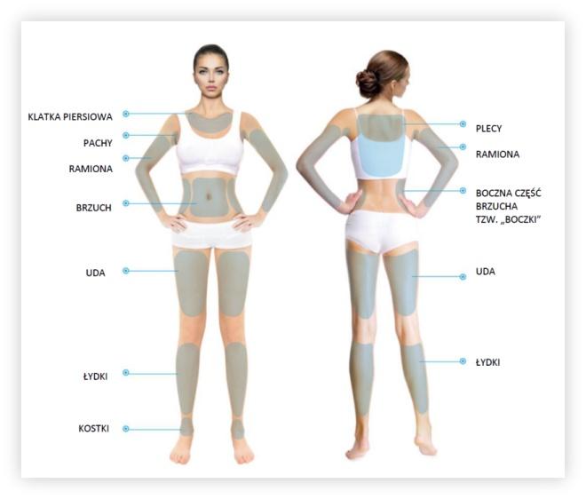 wykonywanie HIFU - obszary na ciele